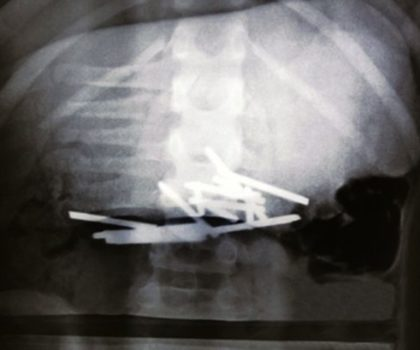 doctors-removed-12-steel-nails-from-school-boy-which-she-swallowed-because-of-rare-condition1